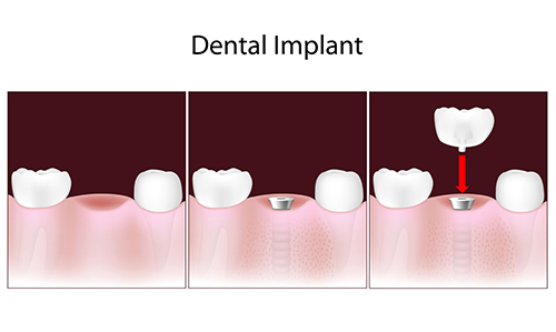 Dental Implants in Tuckahoe